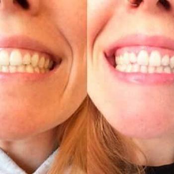 quanto custa clareamento de dentes