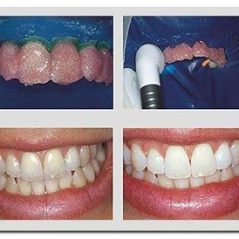 quanto custa um clareamento de dente