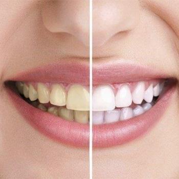 quanto custa um clareamento dental